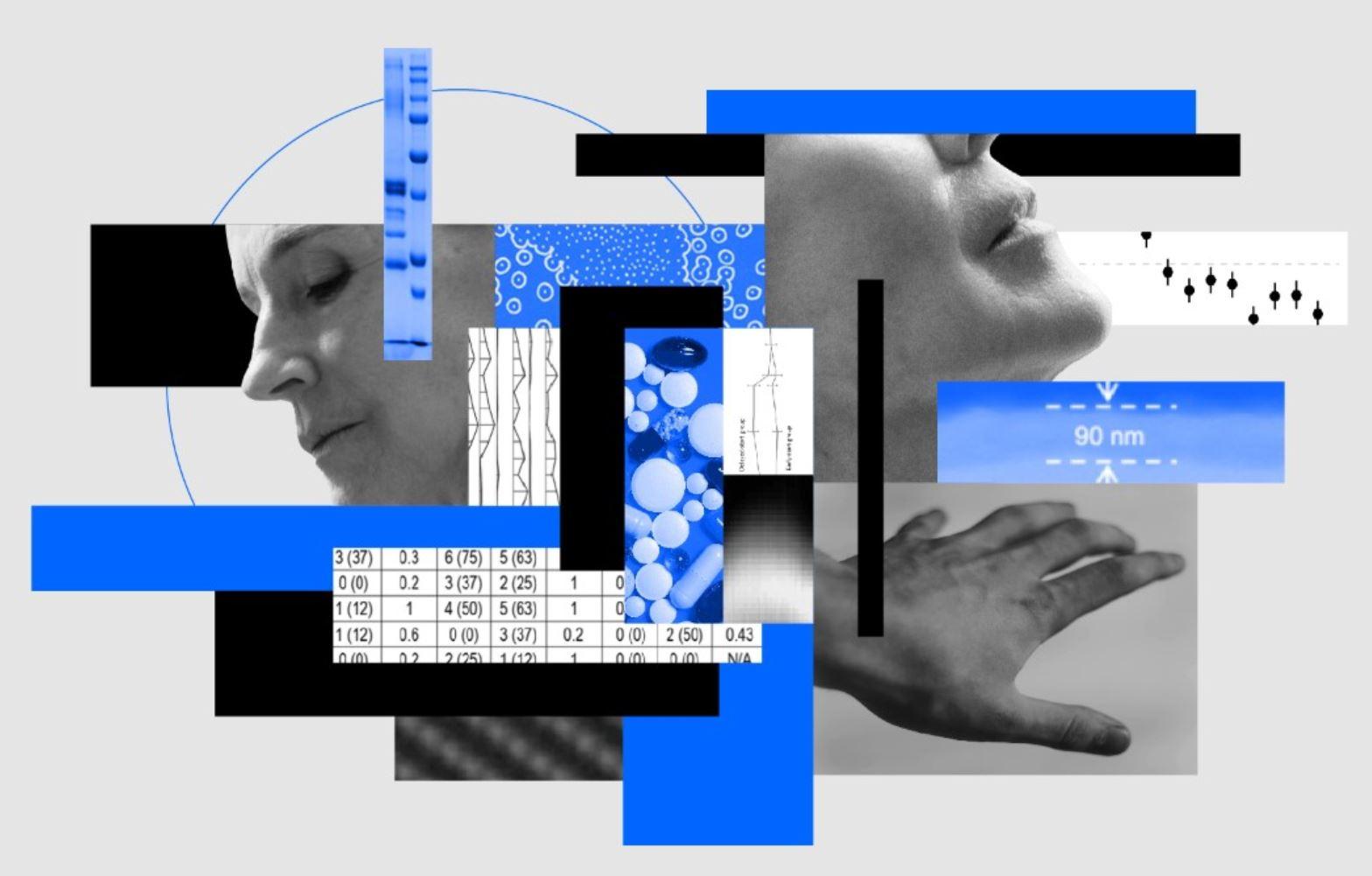 intelligenza artificiale Parkinson